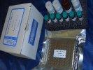 黄曲霉毒素B1试剂盒
